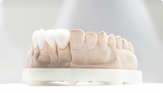 Коронки и мостовидные протезы